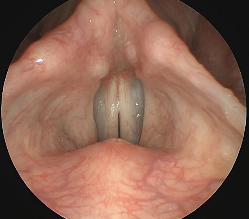 лор эндоскопия что это, эндоскопия горла, эндоскопия горла и гортани, эндоскопия горла цена, эндоскопия лор органов цена, эндоскопия носа детям, видеоэндоскопия, видео эндоскопия, видеоэндоскопия ЛОР, видеоэндоскопия ухо горло нос